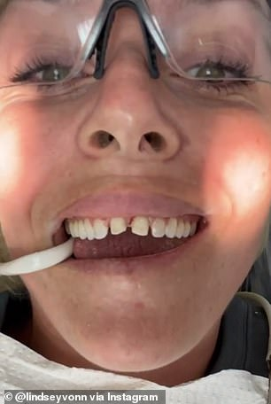 Before and after: Lindsay Vaughn, 35, shared a behind-the-scenes video of her wearing veneers on her front teeth