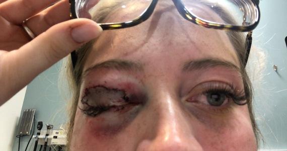 USA: A 23-year-old beautician dog bitten an eyelid