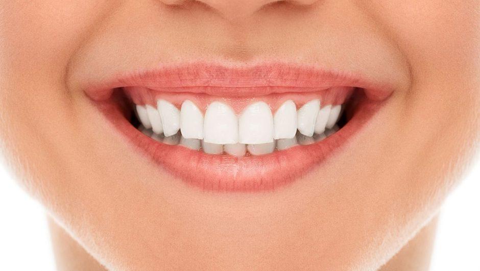 SmileDirectClub Debuts New Lifetime Smile Guarantee™