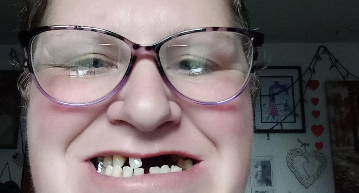 She pulled out 11 teeth because she couldn't reach the dentist